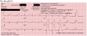 STEMI Ambulance Service of Manchester Pre-hospital EKG Transmission